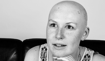 Emily Mackay after her chemotherapy