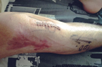 Edward's leg after his second operation following his motorbike accident